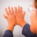 Mala salud bucal eleva riesgo de artritis reumatoide