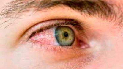 ojo-seco01