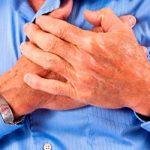 Sí existe síndrome de corazón roto